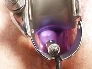 cougar ruzena gyno fetish clinic medic visit